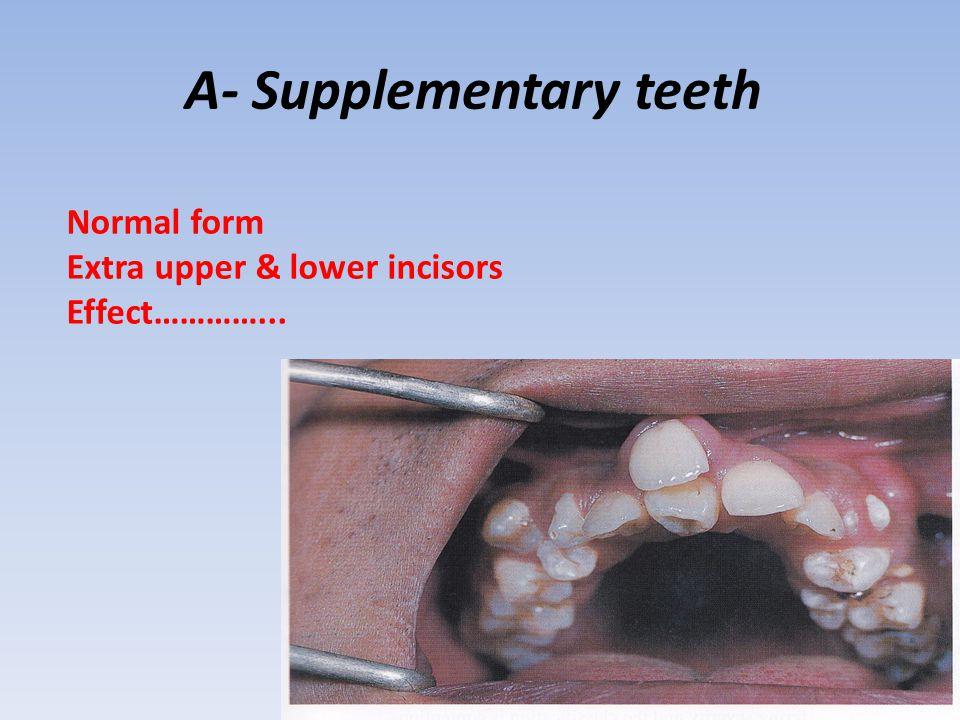 A- Supplementary teeth