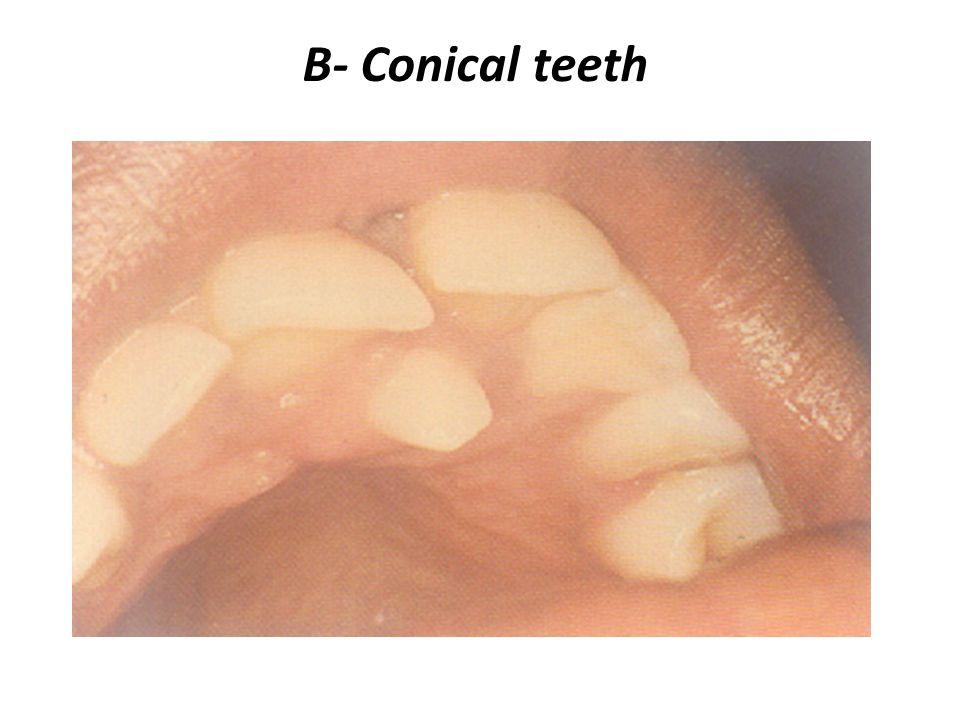 B- Conical teeth