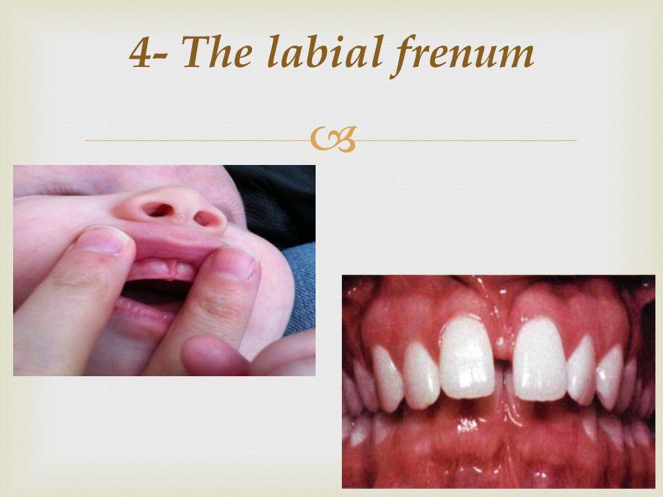 4- The labial frenum