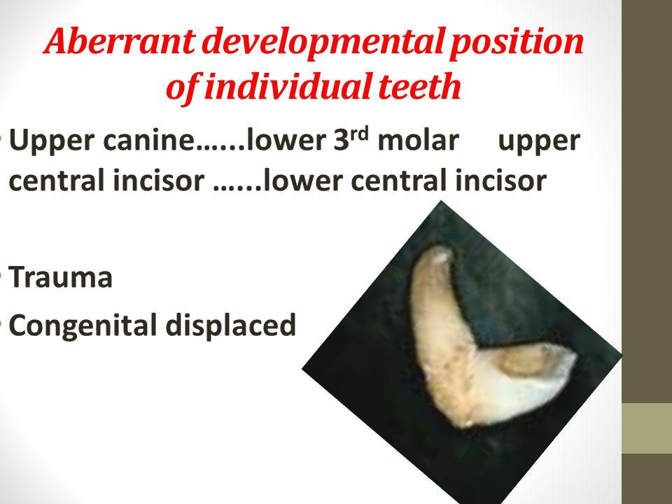 Aberrant developmental position of individual teeth