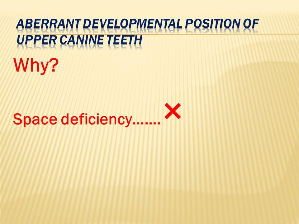Aberrant developmental position of upper canine teeth