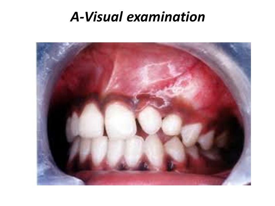 A-Visual examination