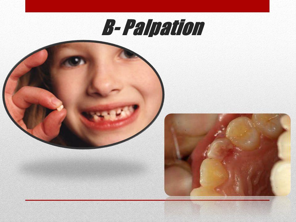 B- Palpation