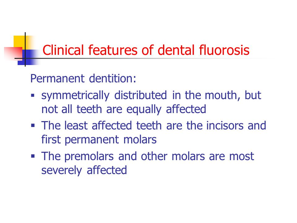 Clinical features of dental fluorosis
