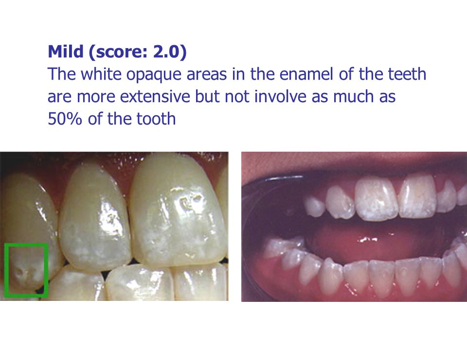 Mild (score: 2.0) The white opaque areas in the enamel of the teeth are more extensive but not involve as much as 50% of the tooth
