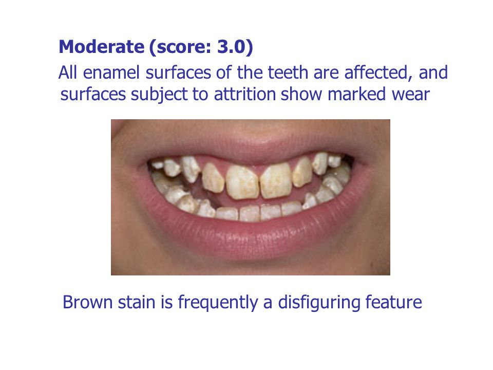 Moderate (score: 3.0) All enamel surfaces of the teeth are affected, and surfaces subject to attrition show marked wear.