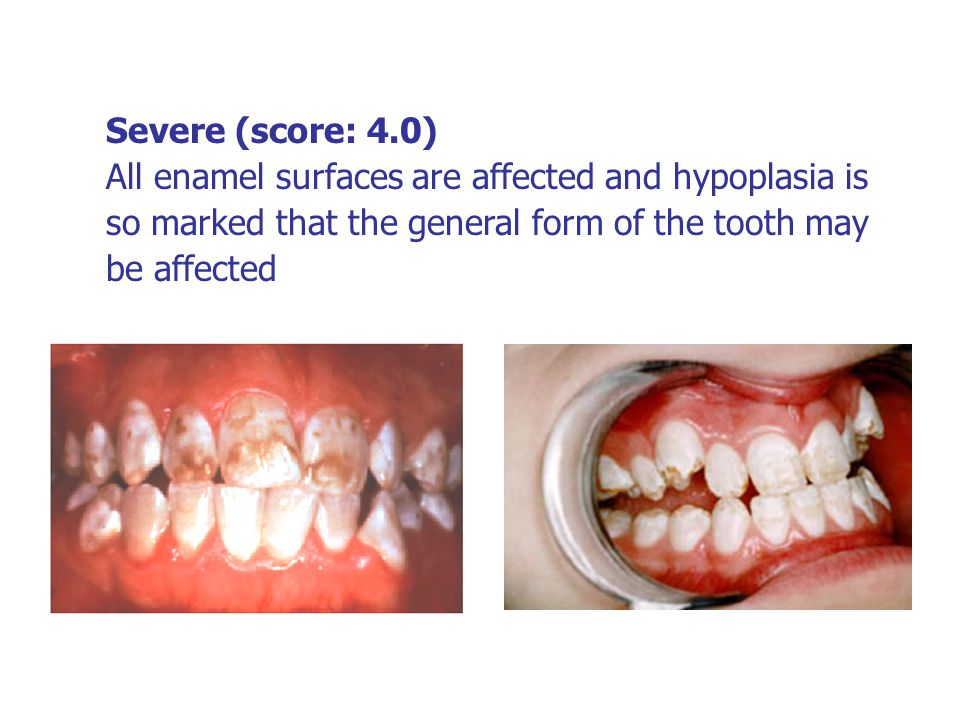 Severe (score: 4.0) All enamel surfaces are affected and hypoplasia is so marked that the general form of the tooth may be affected.