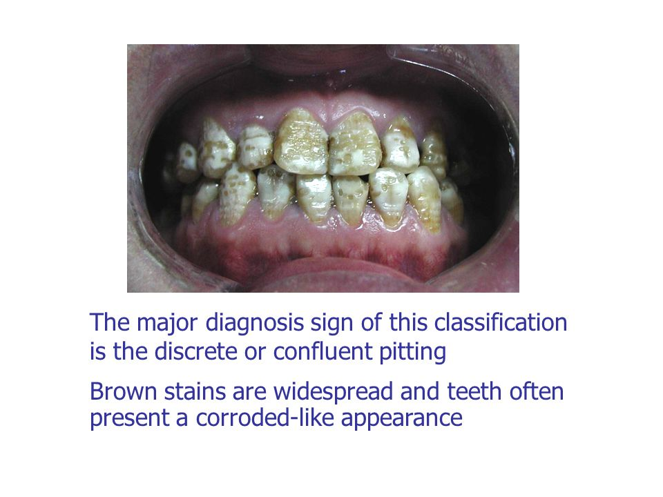 The major diagnosis sign of this classification is the discrete or confluent pitting