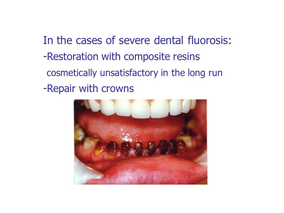 In the cases of severe dental fluorosis: