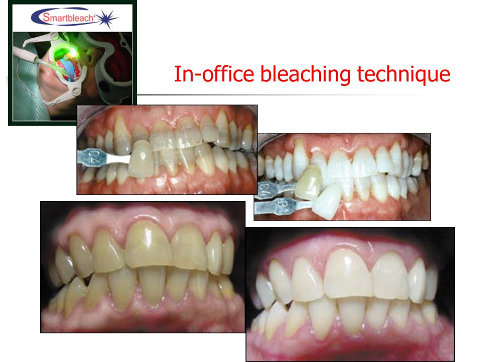 In-office bleaching technique