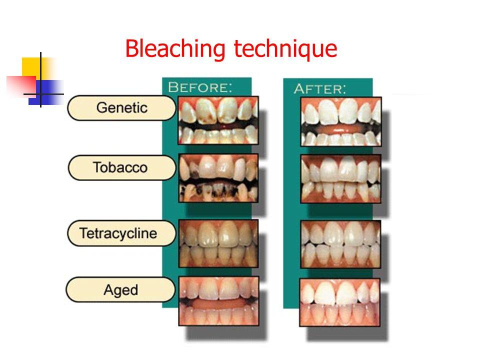 Bleaching technique