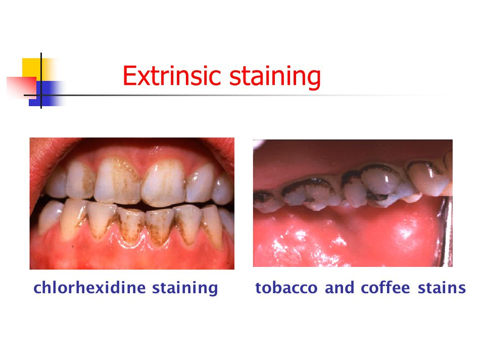 Extrinsic staining chlorhexidine staining tobacco and coffee stains
