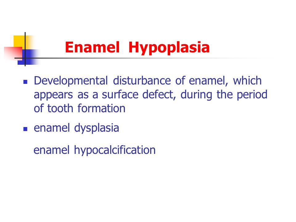 Enamel Hypoplasia Developmental disturbance of enamel, which appears as a surface defect, during the period of tooth formation.