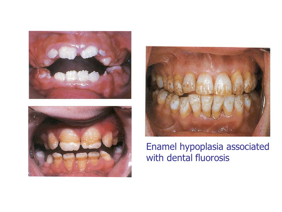 Enamel hypoplasia associated