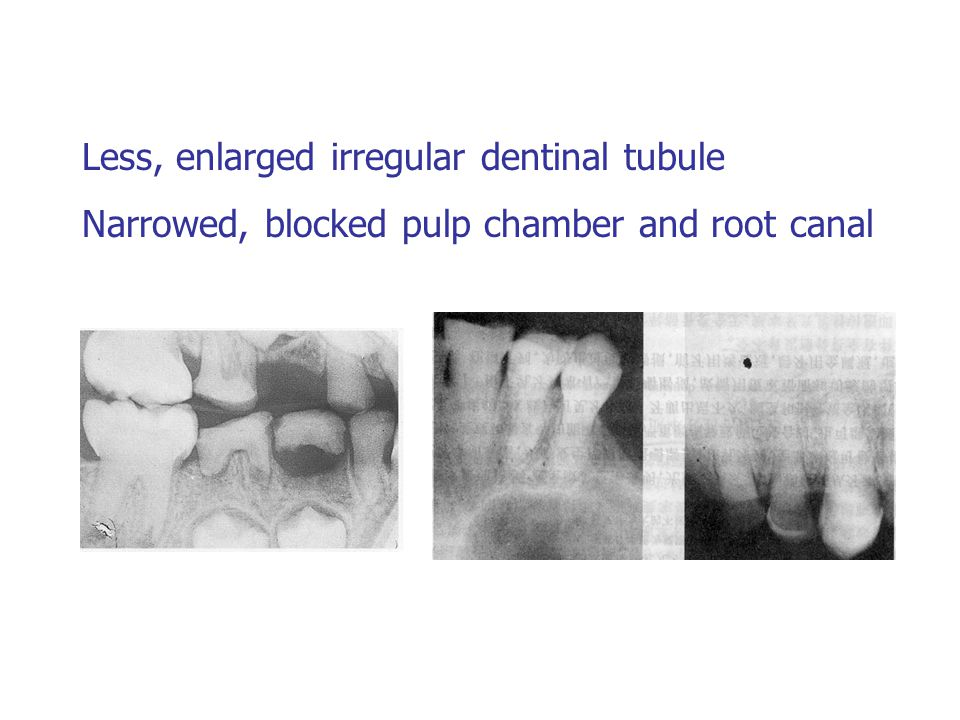 Less, enlarged irregular dentinal tubule