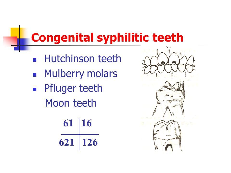Congenital syphilitic teeth
