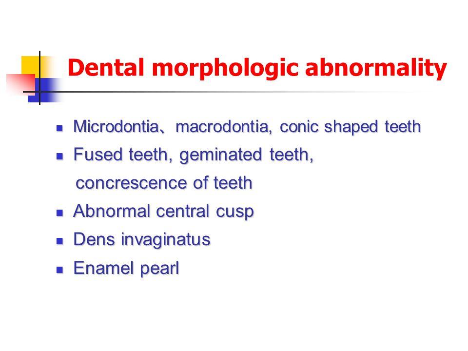 Dental morphologic abnormality