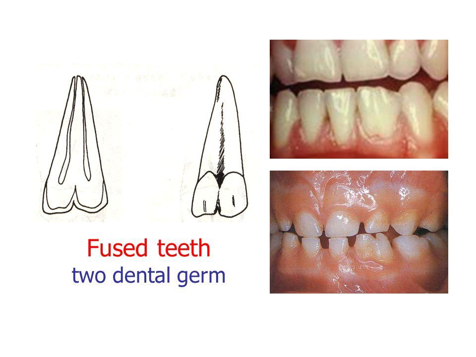 Fused teeth two dental germ