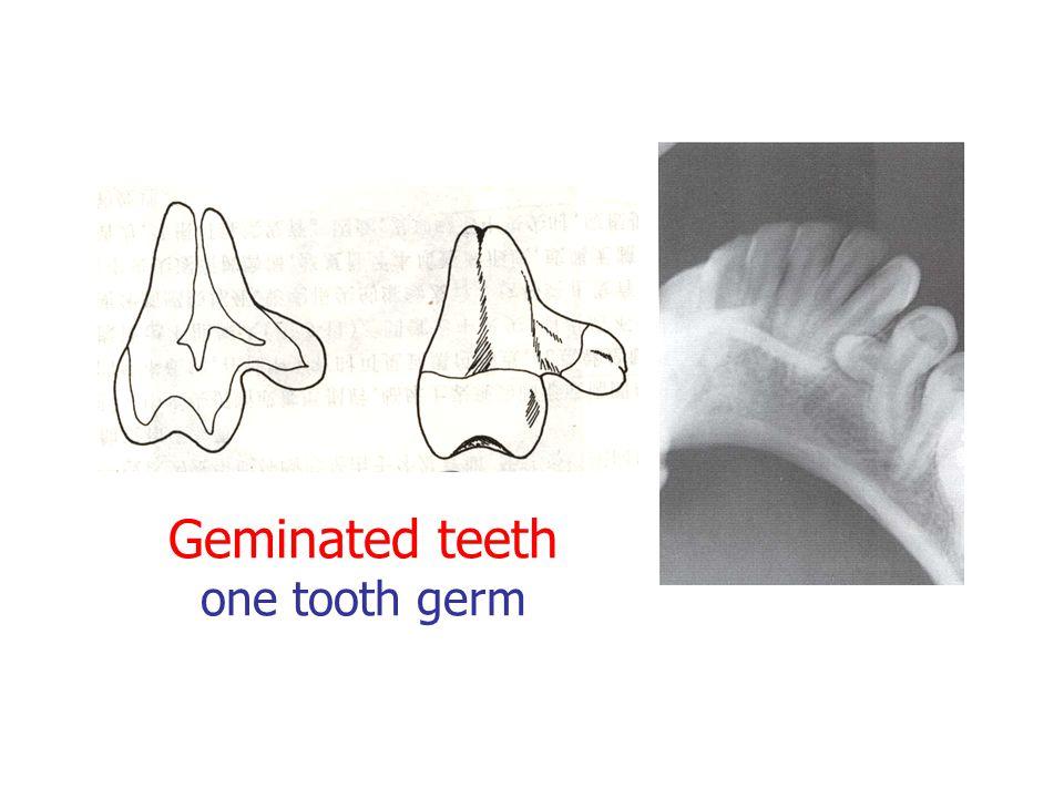 Geminated teeth one tooth germ