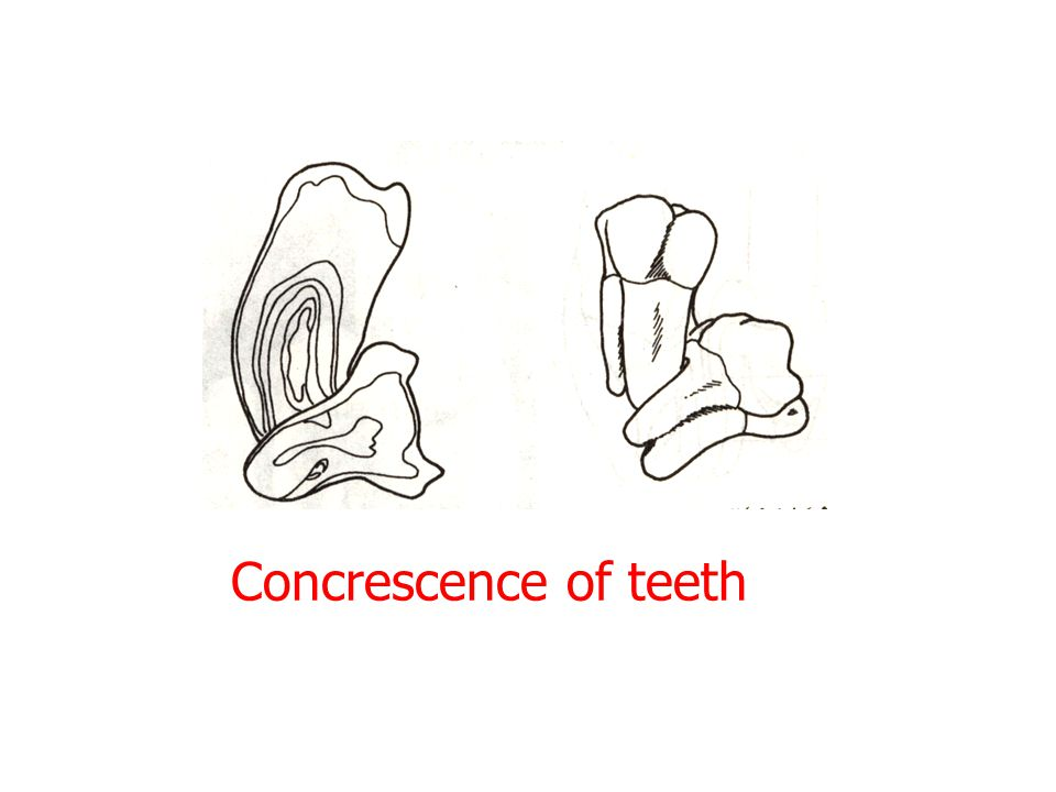 Concrescence of teeth