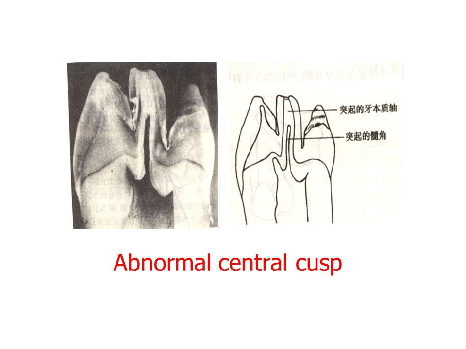 Abnormal central cusp