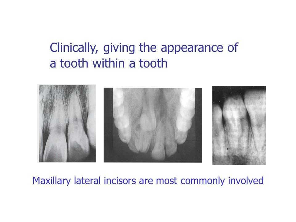 Clinically, giving the appearance of a tooth within a tooth