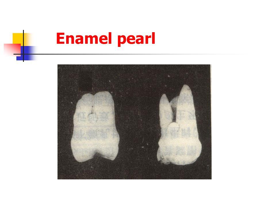 Enamel pearl