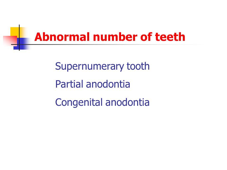 Abnormal number of teeth