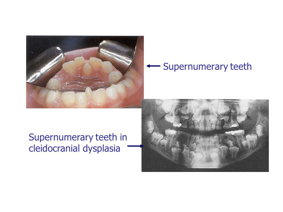 Supernumerary teeth Supernumerary teeth in cleidocranial dysplasia