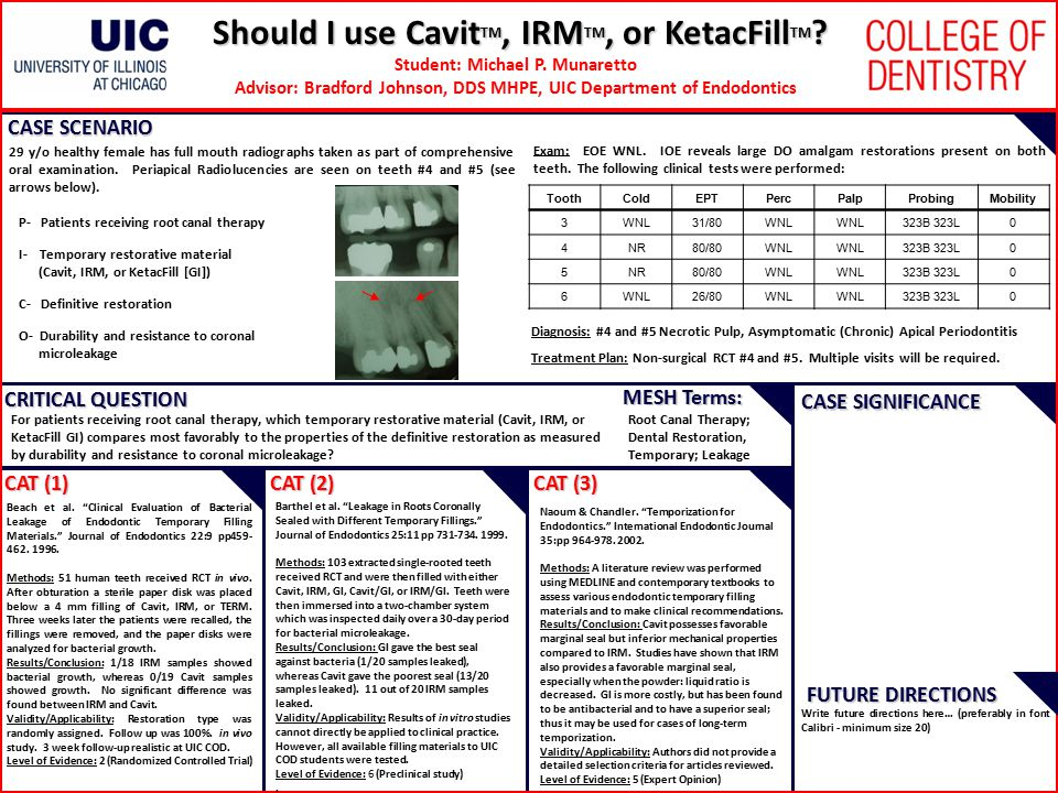 Should I use CavitTM, IRMTM, or KetacFillTM