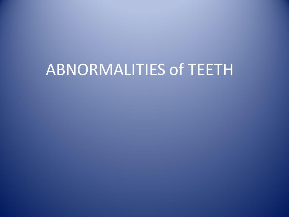 ABNORMALITIES of TEETH