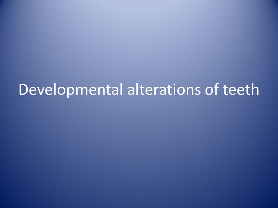 Developmental alterations of teeth