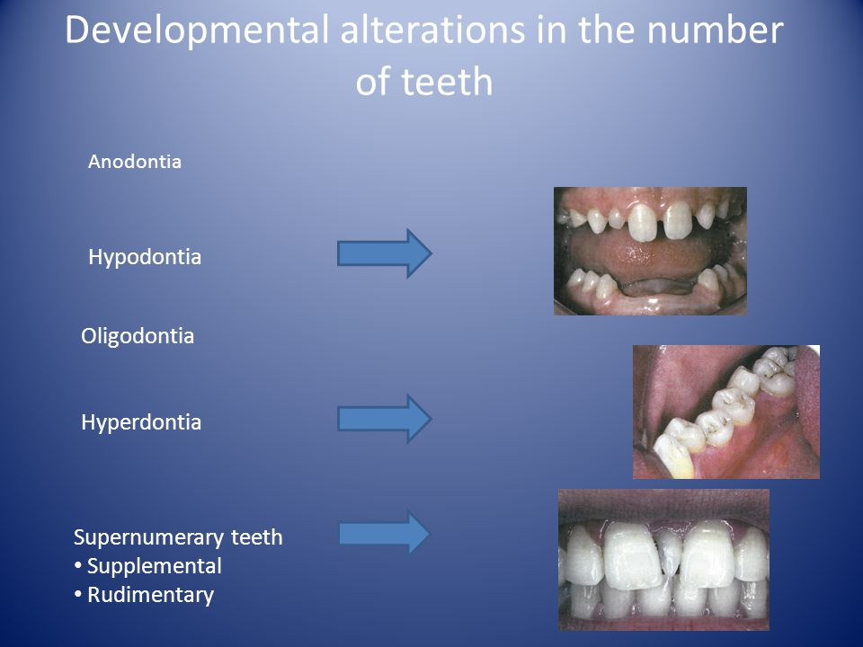 Developmental alterations in the number of teeth