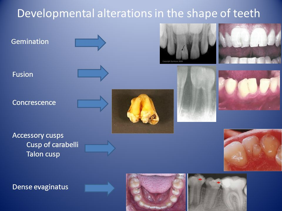 Developmental alterations in the shape of teeth