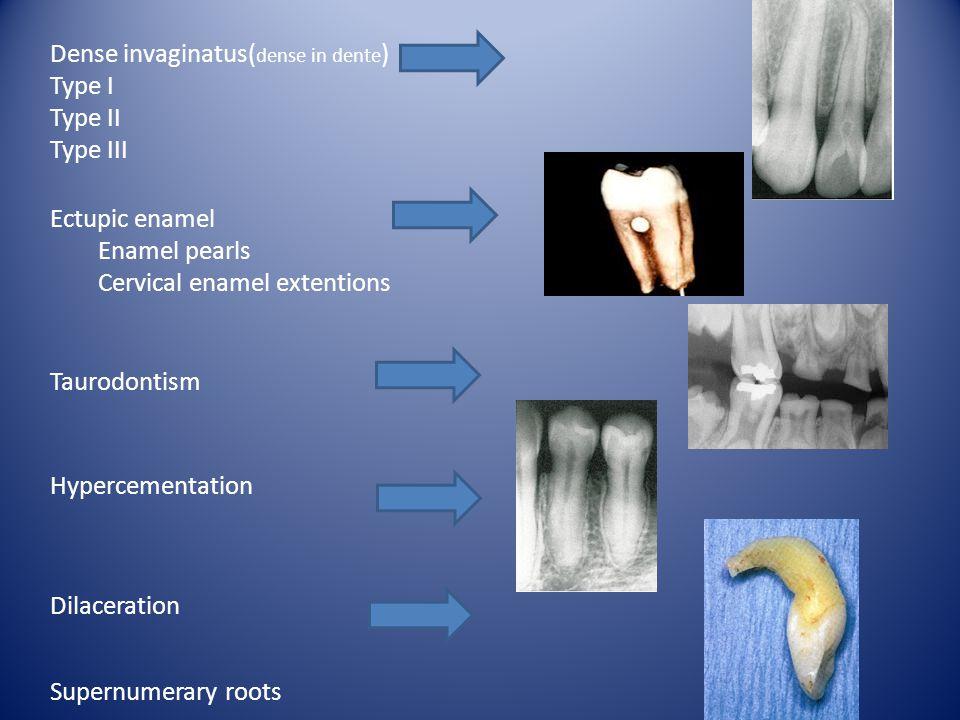 Dense invaginatus(dense in dente)