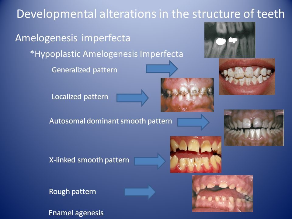 Developmental alterations in the structure of teeth