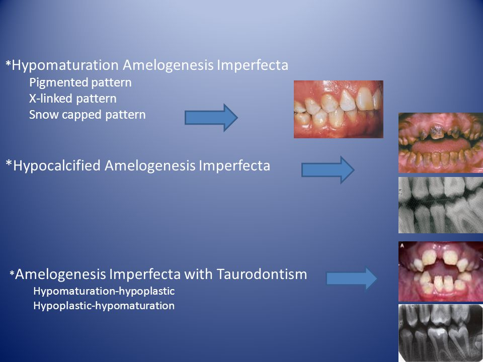 *Hypocalcified Amelogenesis Imperfecta