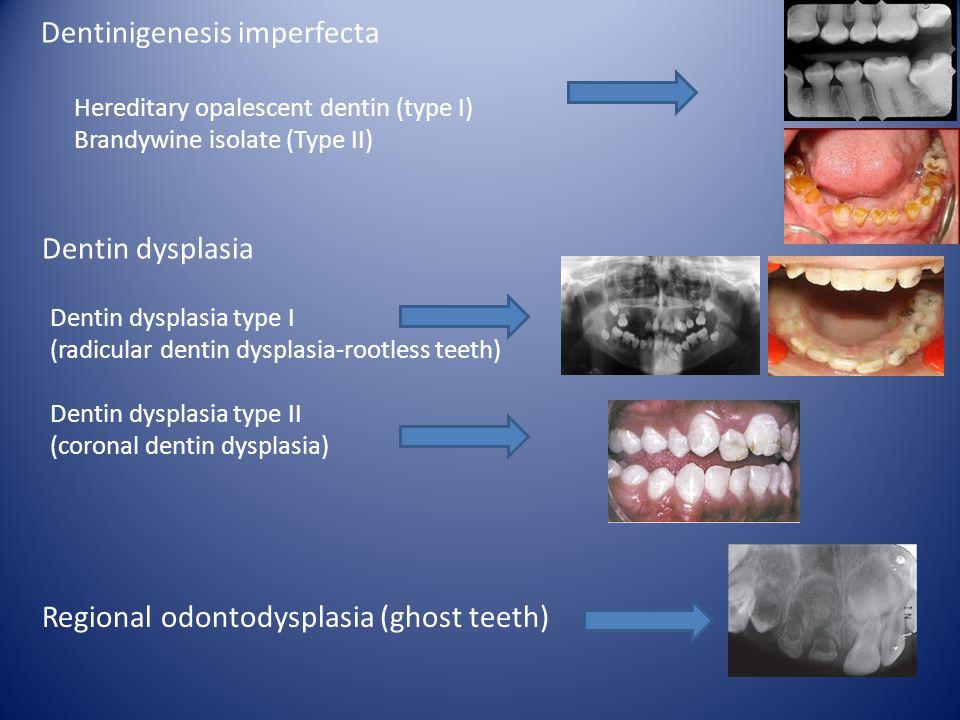 Dentinigenesis imperfecta