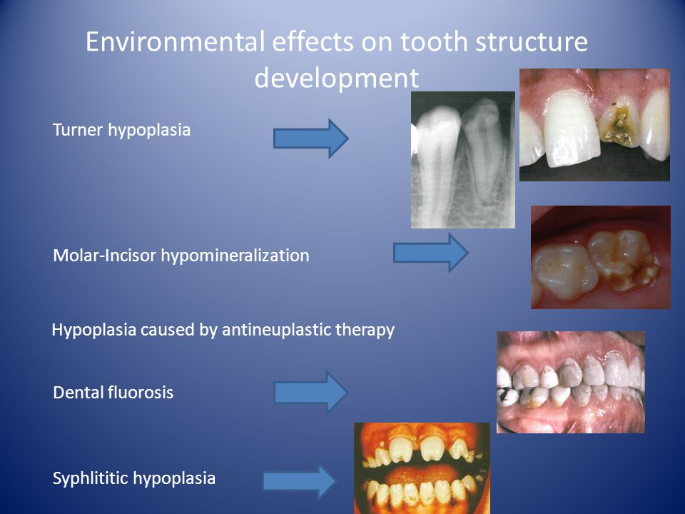 Environmental effects on tooth structure development