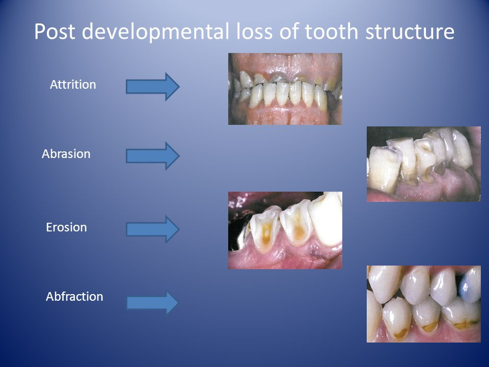 Post developmental loss of tooth structure
