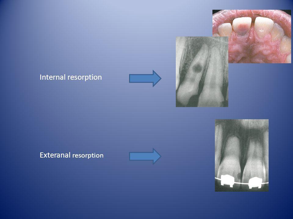 Internal resorption Exteranal resorption