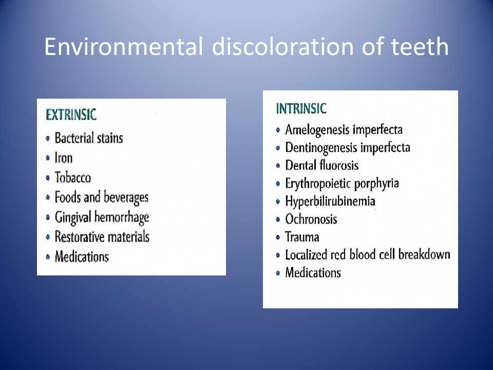 Environmental discoloration of teeth