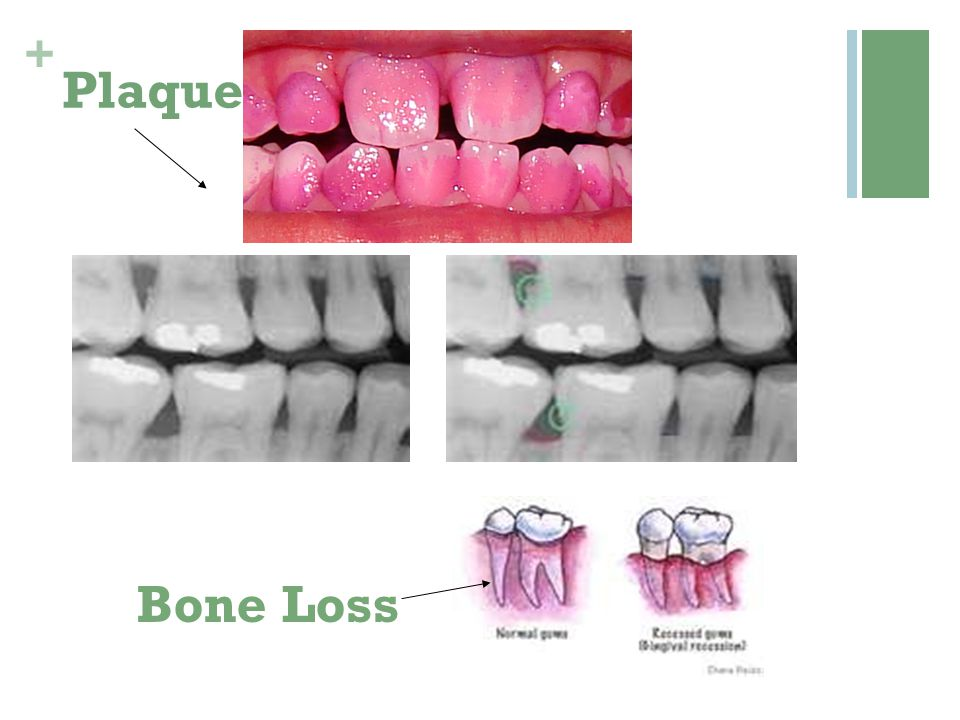 Plaque Bone Loss