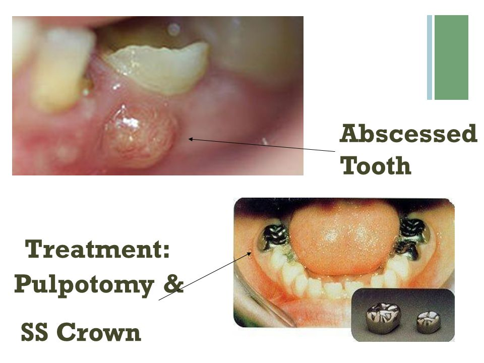 Abscessed Tooth Treatment: Pulpotomy & SS Crown