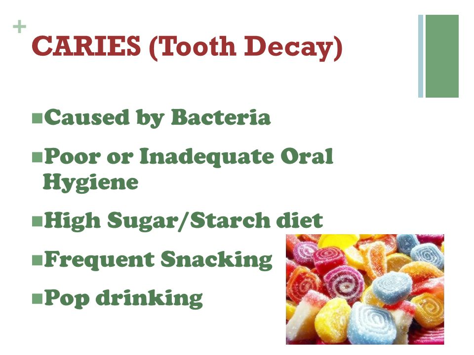 CARIES (Tooth Decay) Caused by Bacteria
