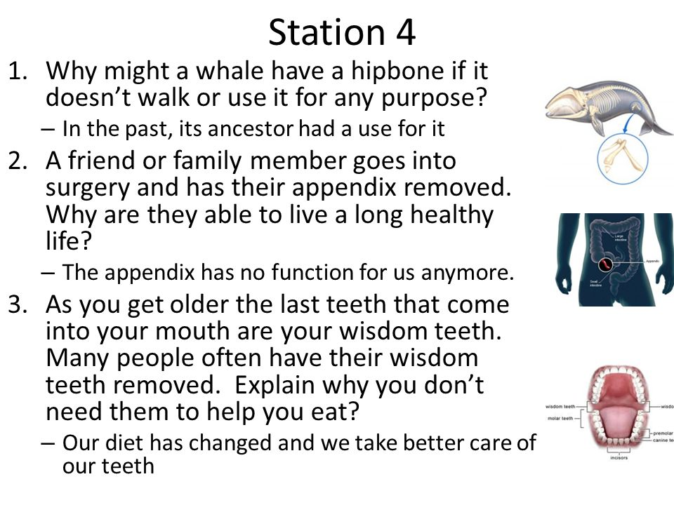 Station 4 Why might a whale have a hipbone if it doesn't walk or use it for any purpose In the past, its ancestor had a use for it.