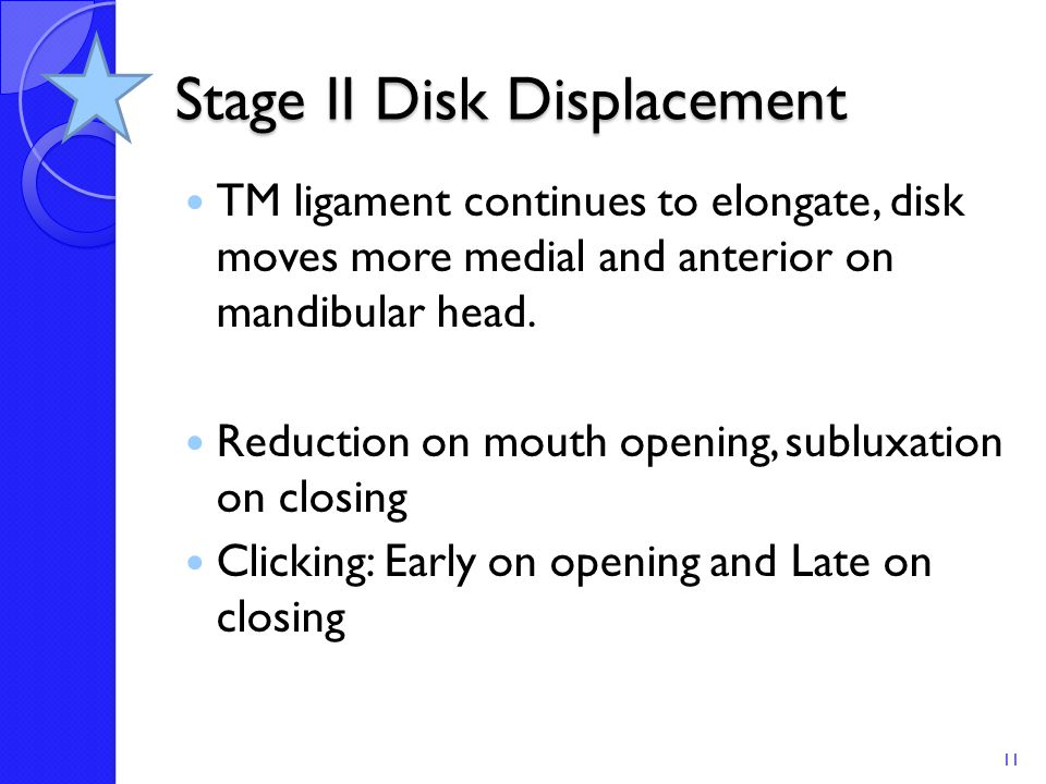 Stage II Disk Displacement