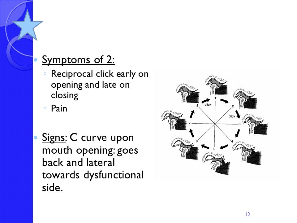 Symptoms of 2: Reciprocal click early on opening and late on closing. Pain.