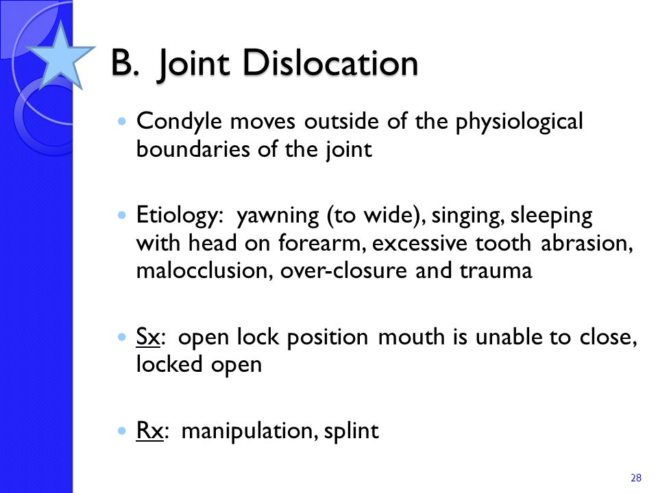 B. Joint Dislocation Condyle moves outside of the physiological boundaries of the joint.