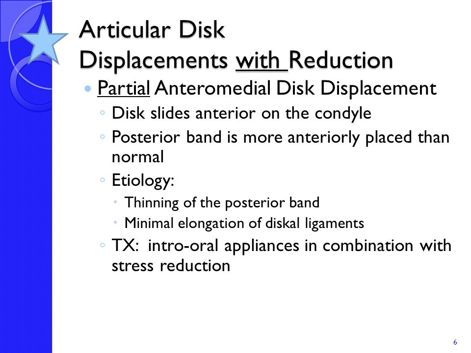 Articular Disk Displacements with Reduction
